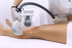 Primelase hair removal treatment